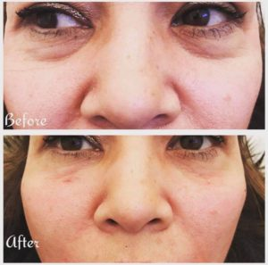 Under eye trough area treated with fillers at James Christian Cosmetics in New York.