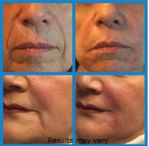 Marionette lines addressed with fillers at James Christian Cosmetics in Long Island, New York.