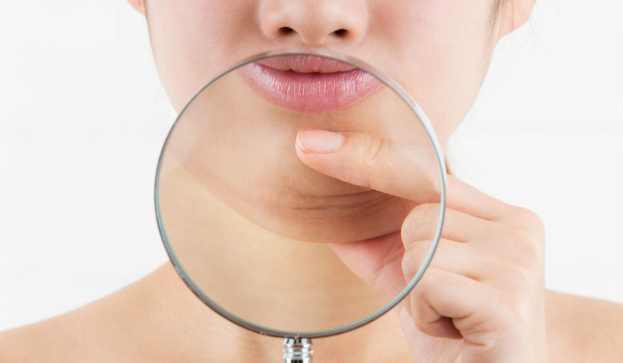 5 Reasons KYBELLA Is Better Than Liposuction - James Christian Cosmetics