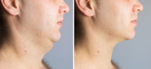 Get Rid of Your Double Chin Without Losing Weight Blog by James Christian Cosmetics, NY 917-860-3113.