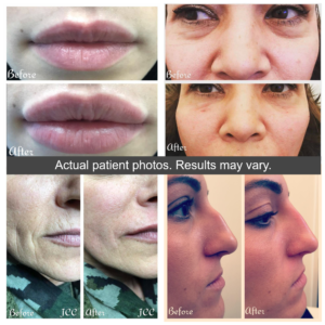 See our before and after results from filler clients in Manhattan and Long Island. James Christian Cosmetics 917.860.3113