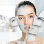 Dermal Fillers vs Facelifts: Which is Better?